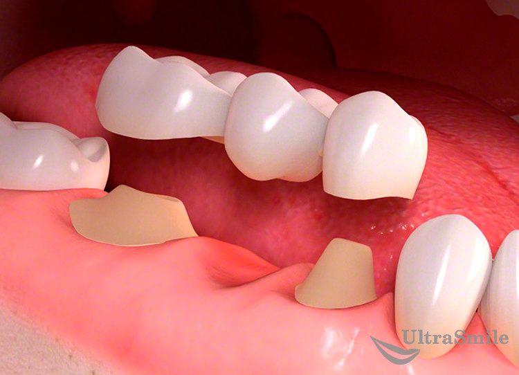5 частых ошибок при установке зубного моста