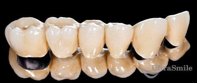 Обзор зубных коронок