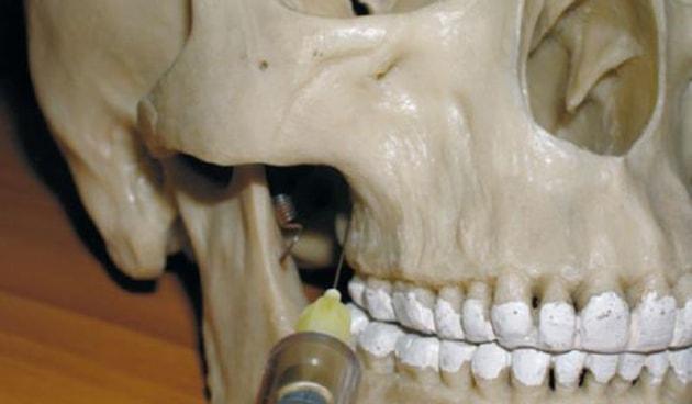 Внутрикостная анестезия зубов