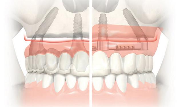Метод комплексного восстановления зубов All-on-4