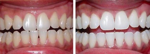 Скорлупа грецкого ореха применение для зубов