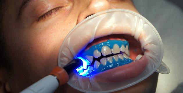 5 причин, которые объясняют популярность лазерного отбеливания зубов
