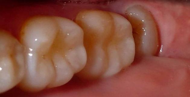 Давление на соседние зубы