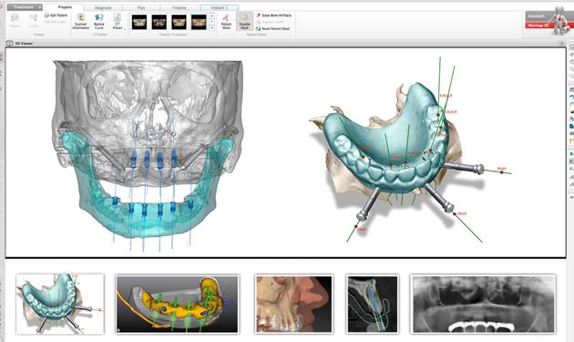 3D моделирование будущей имплантации зубов