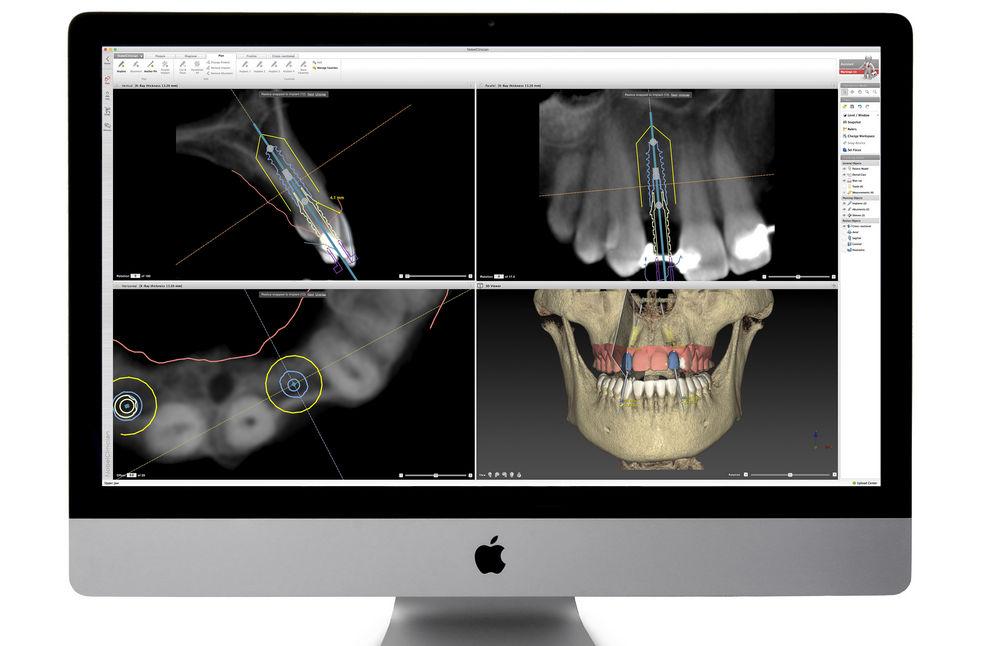Процесс создания трехмерной модели челюсти пациента