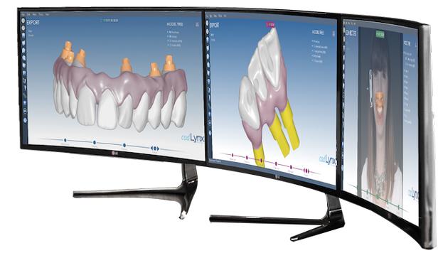 3D моделирование - будущее стоматологии