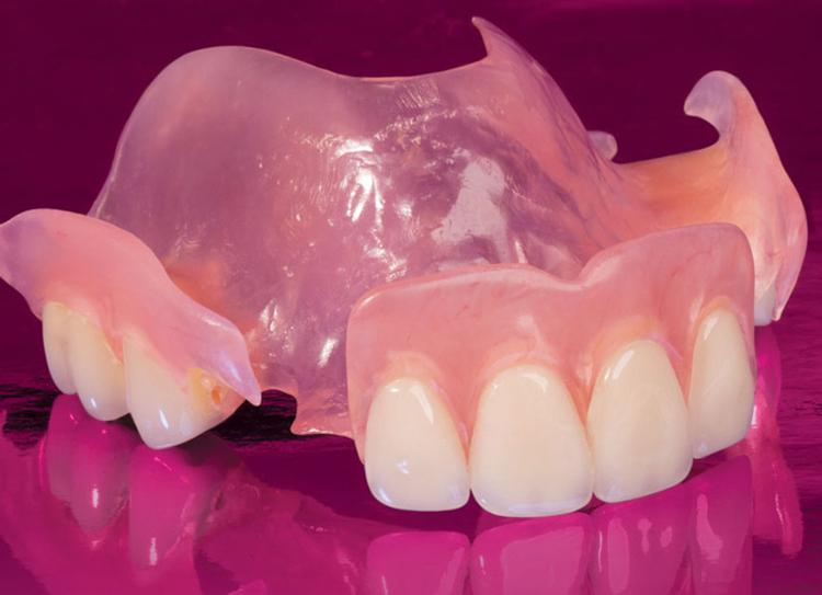 5 случаев, когда необходимы зубные протезы