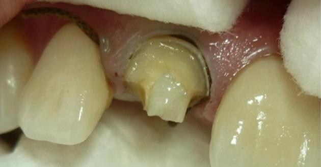Разрушена коронковая часть зуба