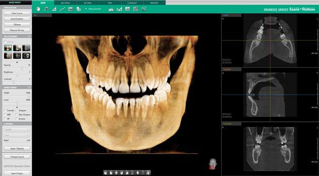 По 3D снимку зубов определяется положение зубов и челюсти