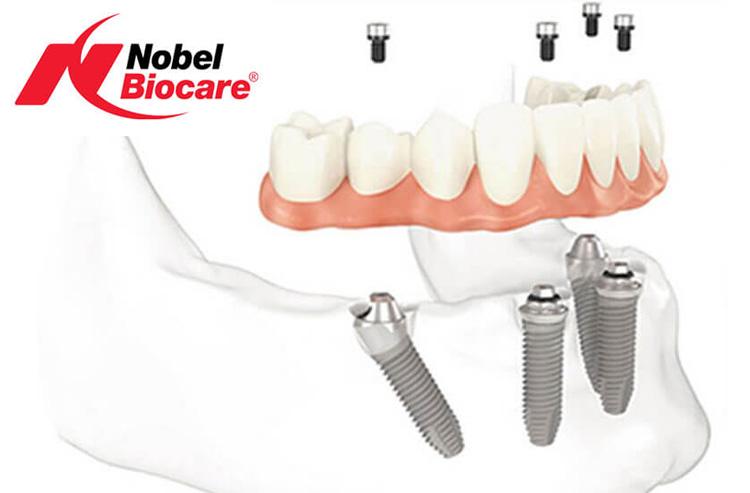 Обзор моделей имплантов Nobel: отзывы врачей и пациентов