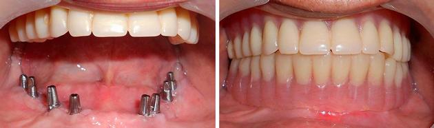 На фото показана базальная имплантация зубов