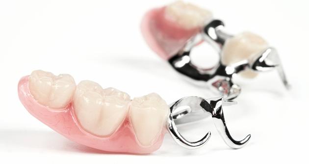 Бюгельный зубной протез может травмировать язык