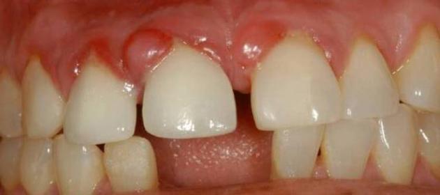 На фото изображена киста зуба