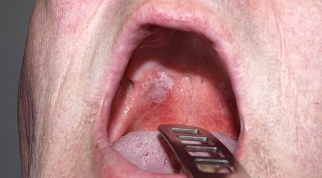 Лейкоплакия курильщиков