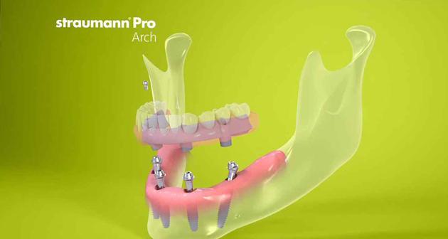 Pro Arch на 4-х имплантатах