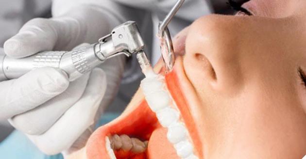 На фото показана профессиональная чистка зубных отложений