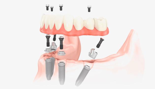 При данном методе есть возможность устанавливать импланты под наклоном