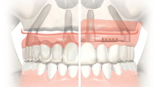 На фото показана схема имплантации на четырех имплантах