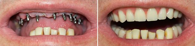 На фото показан результат до и после базальной имплантации