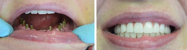 На фото показано восстановление зубов на нижней челюсти