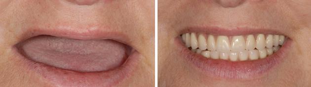 Базальная имплантация на все зубы, фото до и после