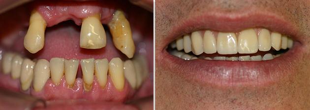 Восстановление верхней челюсти при пародонтите