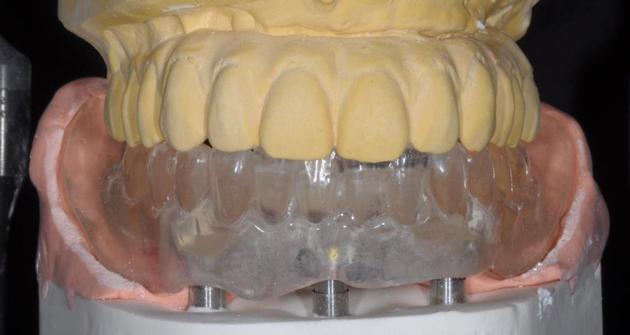 Данная методика позволяет проводить протезирование только на нижней челюсти