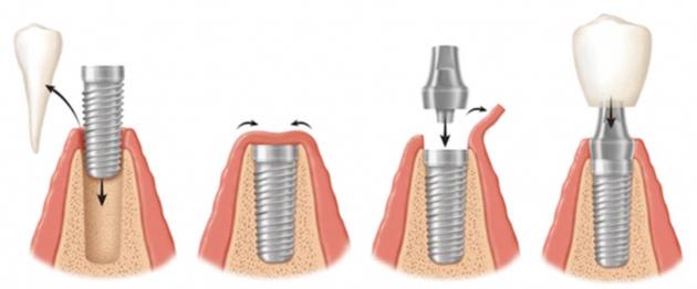 На фото показан процесс классической двухэтапной имплантации
