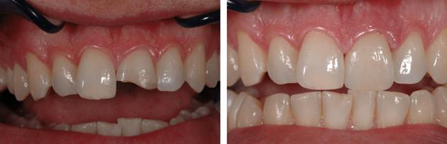 Художественная реставрация зубов. Фото до и после