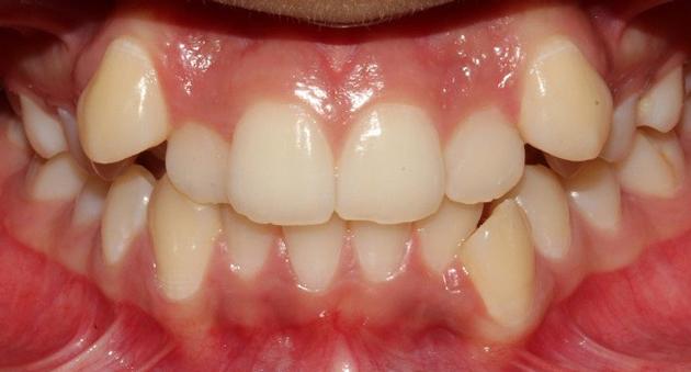 Почему появляются кривые зубы?