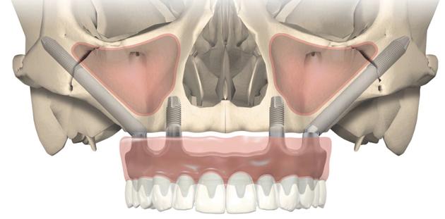 Имплантация по технологии all-on-4 с использованием скуловых имплантов Zygoma