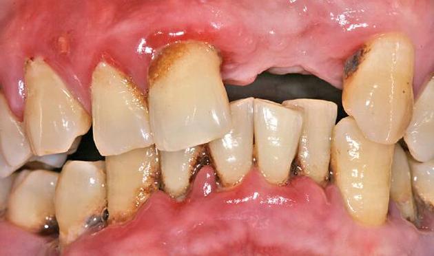 Пародонтит тяжелой формы приводит к потере зубов