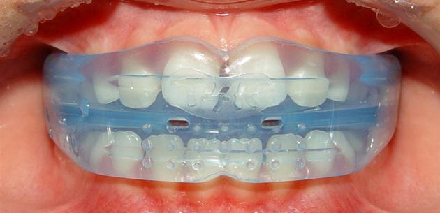 Многофункциональные трейнеры исправляют прикус и укрепляют мышцы челюсти.