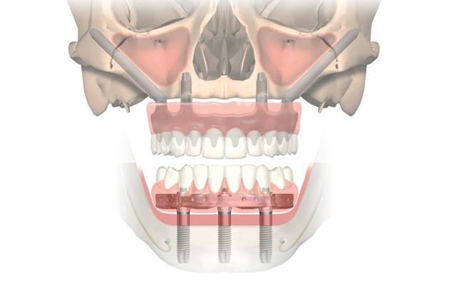 На верхнюю челюсть довольно часто устанавливают скуловые импланты Zygoma