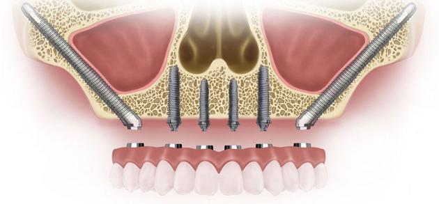 Скуловые импланты Zygoma дают возможность установки в челюстную кость