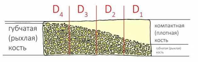 Так классифицируются биотипы костной ткани
