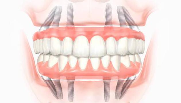 При данном методе возможно установить импланты при полном отсутствии зубов