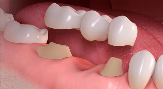 Зубной мост устанавливается с опорой на соседние зубы