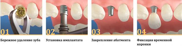 Так выглядит процесс одноэтапной имплантации