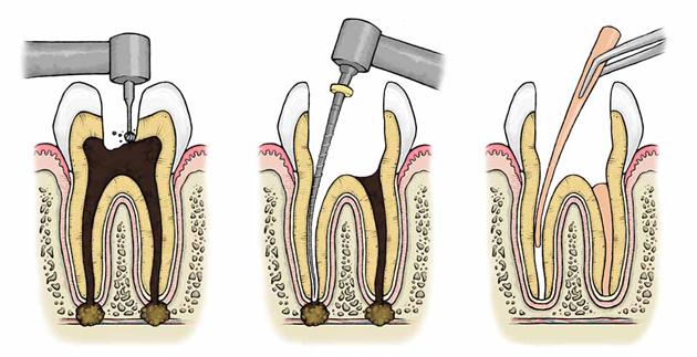Эластичный материал хорошо герметизирует полости зуба