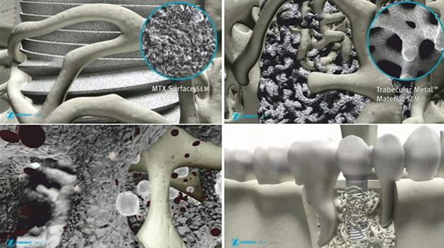 Пористое покрытие способствует приживаемости импланта