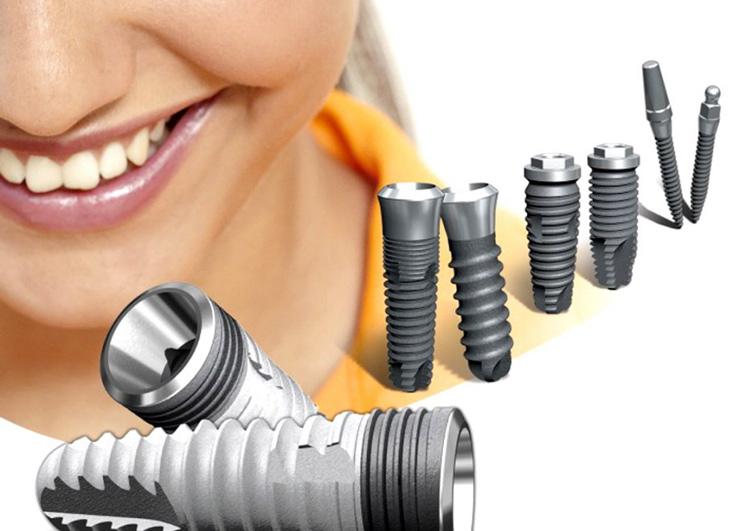Зубные импланты какие лучше