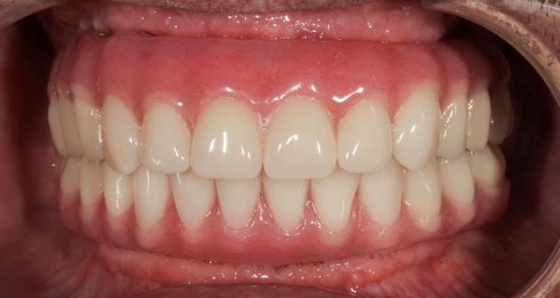 Так выглядят протезы зубов на шести имплантах после установки