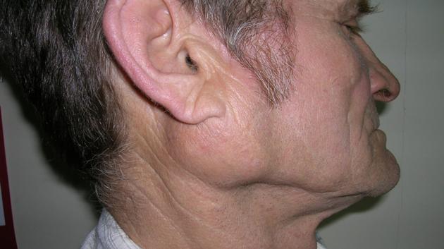 Так выглядит слюннокаменная болезнь околоушной железы