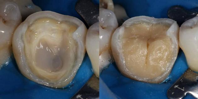 На фото виден дентин - зуб без эмали
