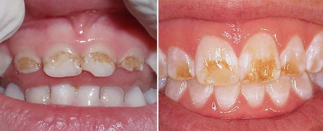 На фото изображена гипоплазия эмали молочных зубов и постоянных
