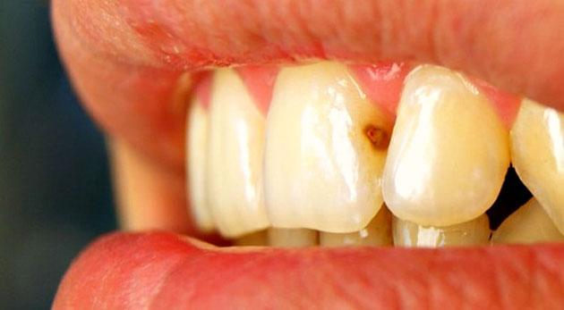 Кариес поражает зуб более локально