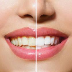отбелить зубы содой