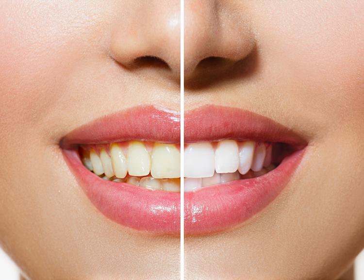 5 секретов, как безопасно отбелить зубы содой