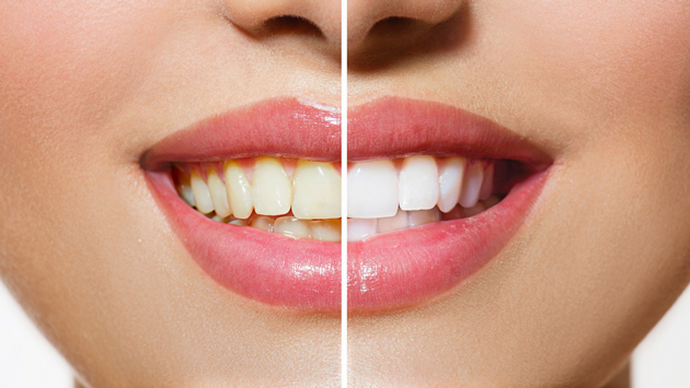 Как отбелить зубы содой без вреда для здоровья?